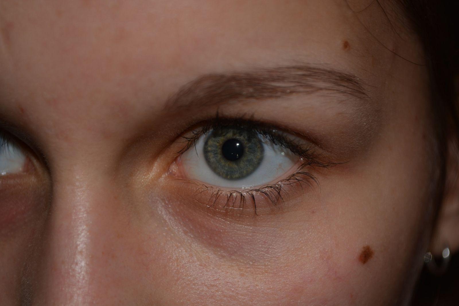 gezichtsanalyse moedervlekken lezen